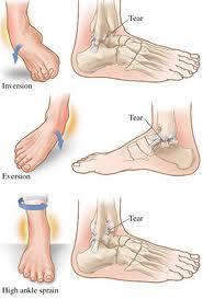 caviglia2