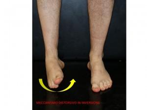 inversion-sprain-300x225