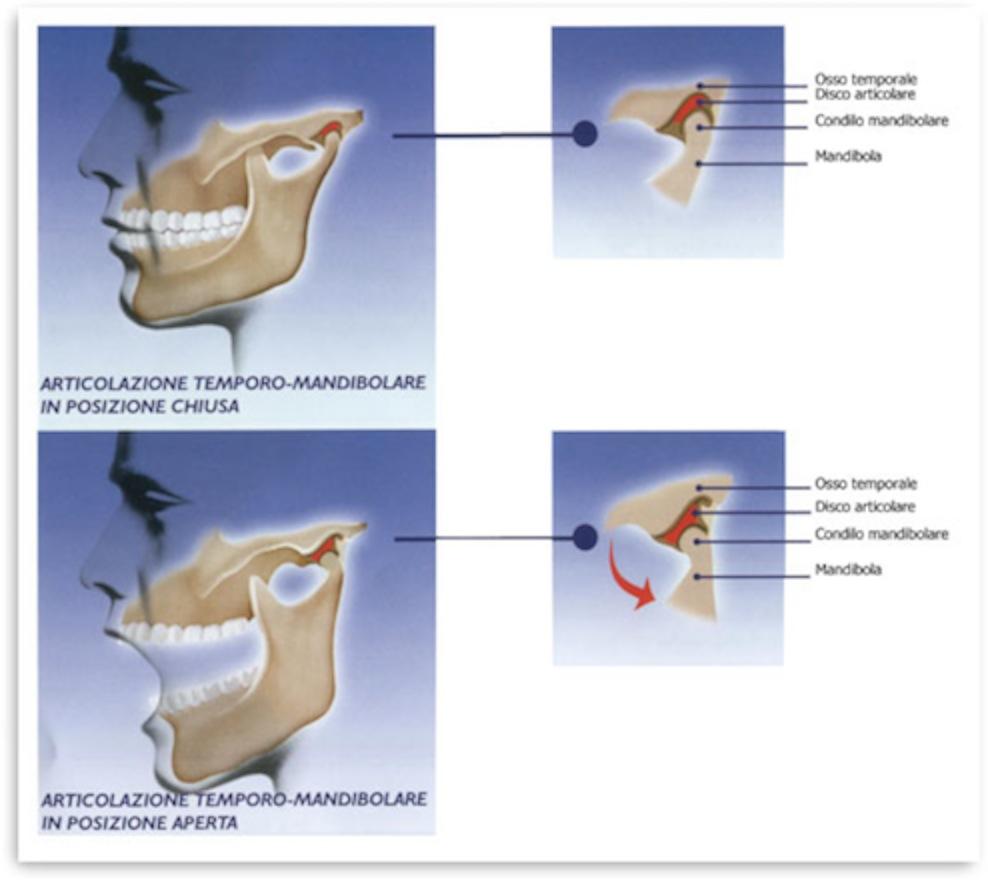 patologie-articolazione-mandibolare_cx1